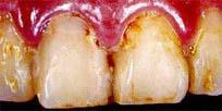 田新歯科セラミックインレー治療前