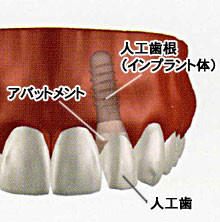 田新歯科インプラント
