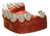 田新歯科インプラント歯が1本ない場合治療前