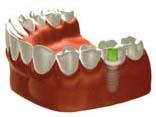 田新歯科インプラント歯が1本ない場合治療後