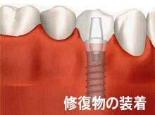 田新歯科インプラント修復物の装着